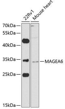 Signal Transduction Antibodies 3 Anti-MAGEA6 Antibody CAB8130