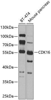 Developmental Biology Anti-CDK16 Antibody CAB8140