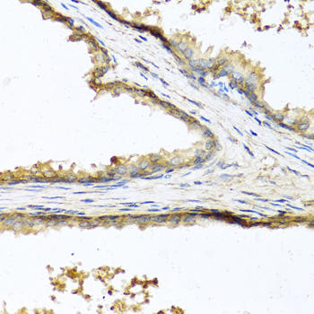Metabolism Antibodies 3 Anti-Sclerostin Antibody CAB8213