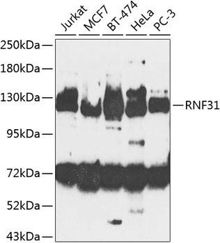 Signal Transduction Antibodies 3 Anti-RNF31 Antibody CAB8227