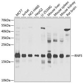 Signal Transduction Antibodies 3 Anti-RNF5 Antibody CAB8351