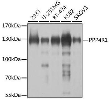 Cell Biology Antibodies 12 Anti-PPP4R1 Antibody CAB8361