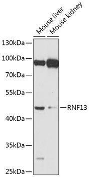 Signal Transduction Antibodies 3 Anti-RNF13 Antibody CAB8363