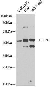 Signal Transduction Antibodies 3 Anti-UBE2U Antibody CAB8376