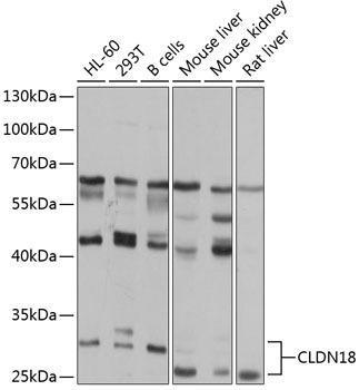 Cell Biology Antibodies 12 Anti-Claudin-18 Antibody CAB8392
