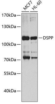 Signal Transduction Antibodies 3 Anti-DSPP Antibody CAB8413