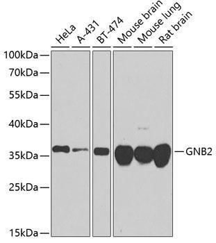 Cell Biology Antibodies 12 Anti-GNB2 Antibody CAB8422