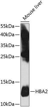 Signal Transduction Antibodies 3 Anti-HBA2 Antibody CAB8427