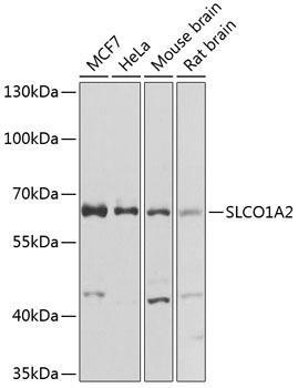 Signal Transduction Antibodies 3 Anti-SLCO1A2 Antibody CAB8452