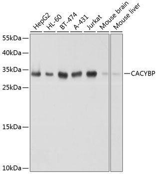 Signal Transduction Antibodies 3 Anti-CACYBP Antibody CAB8757