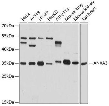 Signal Transduction Antibodies 3 Anti-ANXA3 Antibody CAB8763