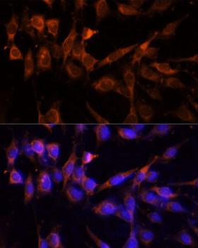 Signal Transduction Antibodies 3 Anti-YWHAH Antibody CAB9079