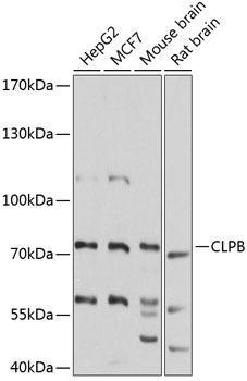 Signal Transduction Antibodies 3 Anti-CLPB Antibody CAB9130