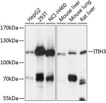 Signal Transduction Antibodies 3 Anti-ITIH3 Antibody CAB9459