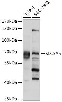 Signal Transduction Antibodies 3 Anti-SLC5A5 Antibody CAB9605