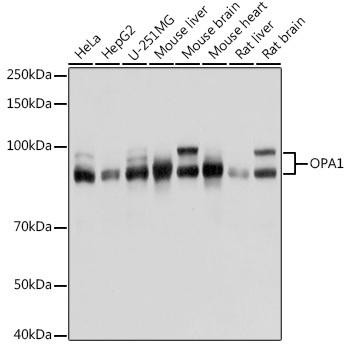 Cell Death Antibodies 2 Anti-OPA1 Antibody CAB9833