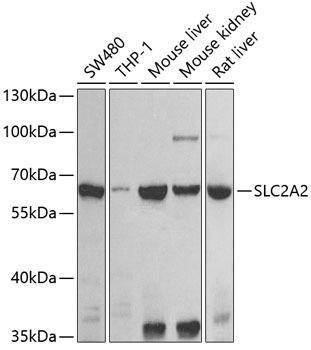Signal Transduction Antibodies 3 Anti-SLC2A2 Antibody CAB9843