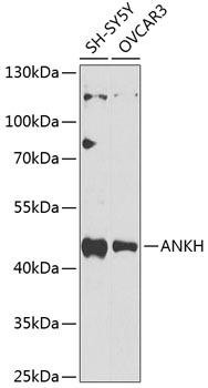 Signal Transduction Antibodies 3 Anti-ANKH Antibody CAB9881