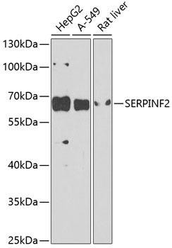 Immunology Antibodies 3 Anti-Alpha-2-antiplasmin Antibody CAB9945