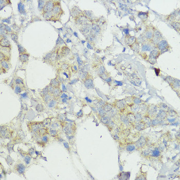 Developmental Biology Anti-SOCS6 Antibody CAB9957