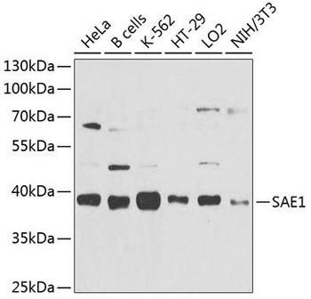 Signal Transduction Antibodies 3 Anti-SAE1 Antibody CAB9960