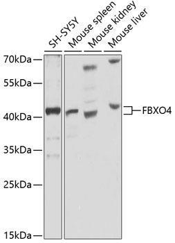 Signal Transduction Antibodies 3 Anti-FBXO4 Antibody CAB9968