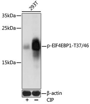 Signal Transduction Antibodies 3 Anti-Phospho-EIF4EBP1-T37/46 Antibody CABP0030