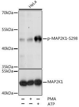 Cell Biology Antibodies 16 Anti-Phospho-MAP2K1-S298 Antibody CABP0063