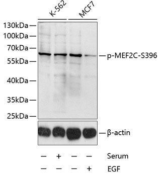 Cell Death Antibodies 2 Anti-Phospho-MEF2C-S396 Antibody CABP0075