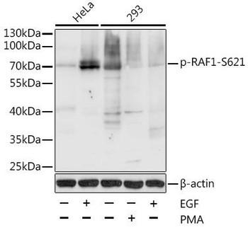 Cell Biology Antibodies 16 Anti-Phospho-RAF1-S621 Antibody CABP0087
