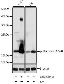 Epigenetics and Nuclear Signaling Antibodies 4 Anti-Phospho-Histone H3-S28 Antibody CABP0097