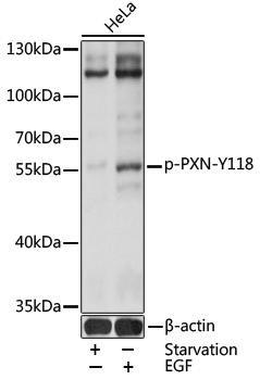 Cell Biology Antibodies 16 Anti-Phospho-Paxillin-Y118 Antibody CABP0156