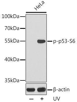 Cell Death Antibodies 2 Anti-Phospho-TP53-S6 Antibody CABP0157
