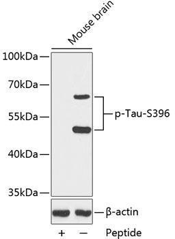 Cell Biology Antibodies 16 Anti-Phospho-MAPT-S396 Antibody CABP0163