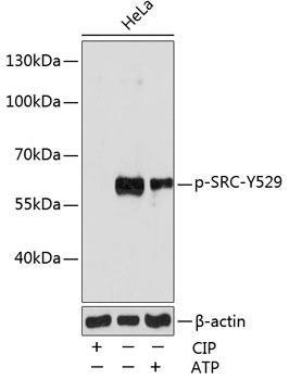 Cell Biology Antibodies 16 Anti-Phospho-SRC-Y529 Antibody CABP0185