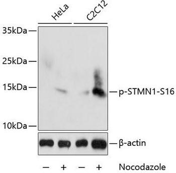 Developmental Biology Anti-Phospho-Stathmin-S16 Antibody CABP0229