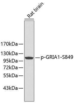Signal Transduction Antibodies 3 Anti-Phospho-GRIA1-S849 Antibody CABP0242