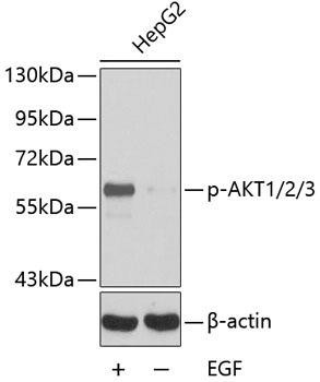 Cell Biology Antibodies 16 Anti-Phospho-AKT1-Y315/AKT2-Y316/AKT3-Y312 Antibody CABP0274