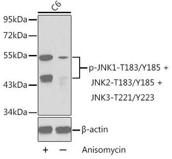 Cell Biology Antibodies 16 Anti-Phospho-MAPK8-T183/Y185 MAPK9-T183/Y185 MAPK10-T221/Y223 Antibody CABP0276