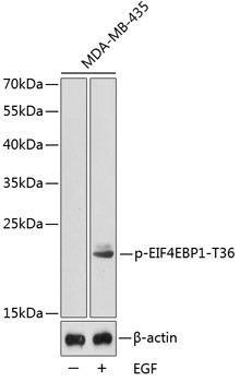 Signal Transduction Antibodies 3 Anti-Phospho-EIF4EBP1-T36 Antibody CABP0344