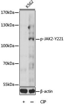 Immunology Antibodies 3 Anti-Phospho-JAK2-Y221 Antibody CABP0374