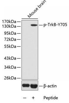 Developmental Biology Anti-Phospho-NTRK2-Y705 Antibody CABP0423