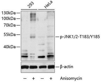 Cell Biology Antibodies 16 Anti-Phospho-JNK1/2-T183/Y185 Antibody CABP0473