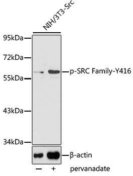 Cell Biology Antibodies 16 Anti-Phospho-SRC-Y416 Antibody CABP0480