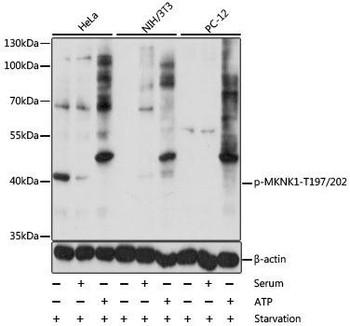 Signal Transduction Antibodies 3 Anti-Phospho-MKNK1-T197/202 Antibody CABP0544