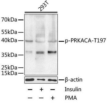 Cell Biology Antibodies 16 Anti-Phospho-PRKACA-T197 Antibody CABP0557