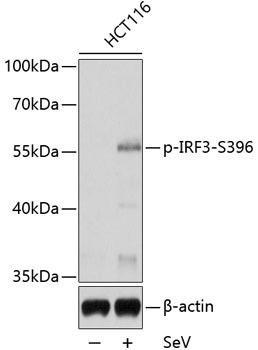 Immunology Antibodies 3 Anti-Phospho-IRF3-S396 Antibody CABP0623