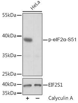 Metabolism Antibodies 3 Anti-Phospho-eIF2alpha-S51 Antibody CABP0745