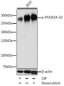 Immunology Antibodies 3 Anti-Phospho-POLR2A-S2 pAb Antibody CABP0749