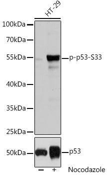 Cell Death Antibodies 2 Anti-Phospho-TP53-S33 pAb Antibody CABP0762